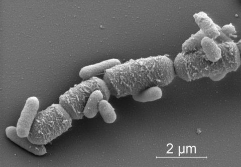 Капсулы с бактериями под микроскопом